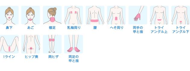 鼻下、あご、襟足、乳輪周り、腰、へそ周り、両手の甲と指、トライアングル上、トライアングル下、Iライン、ヒップ奥、両ヒザ、両足の甲と指